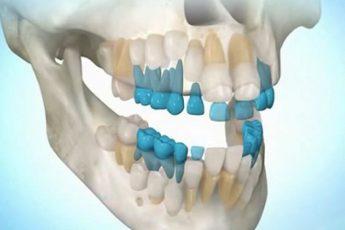 СЕНСАЦИЯ! Как вырастить зубы?