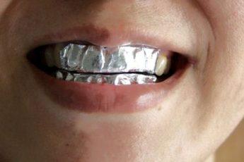 Она прикрепила на зубы фольгу с неожиданной целью… Результат впечатляет!