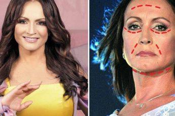 Пластический хирург рассказывает про внешность Софии Ротару